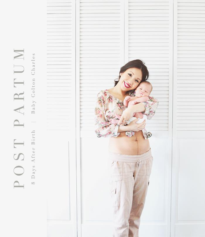 post partum photo